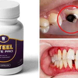 ⚠️Steel Bite Pro Review ⚠️ [Tooth Decay & Gum Disease Treatment]2021