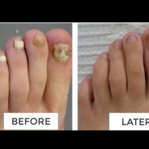 KeraVita Pro Review - Helps to Strengthen Nails and Eliminate infections Nail Fungus.